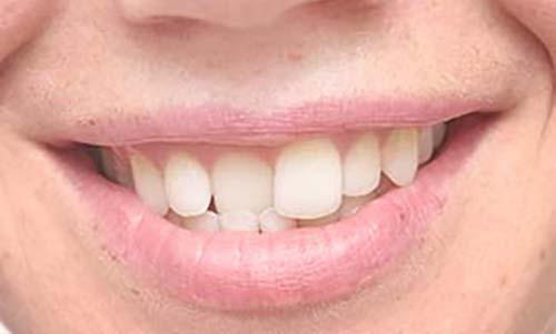 Sourire dents tordues